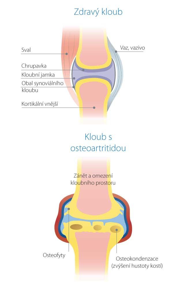 Kloub